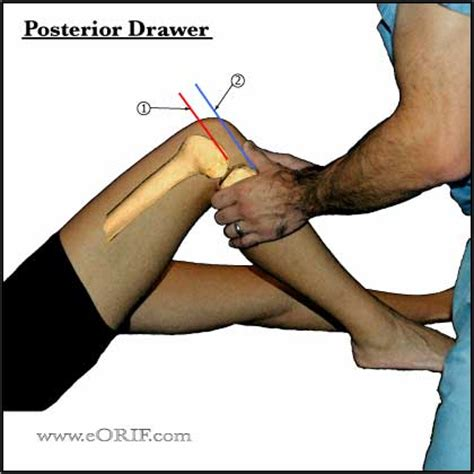 Anterior Drawer Test Knee by Images