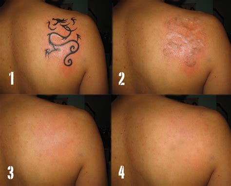 daily photo arts cheap tattoo removal
