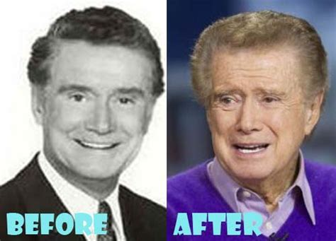 Regis Philbin To Bypass Surgery by Regis Philbin Plastic Surgery Before And After Pictures