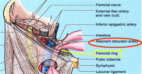 diagram of inguinal canal rims anatomy diagram showing femoral sheath femoral