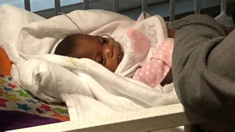 Another Baby Born by Miracle Baby Born At Just 10 Ounces Finally Gets To Go