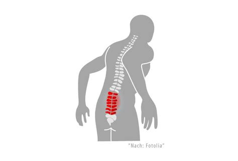schmerzen im fuß beim liegen ischias schmerzen beschwerden im unteren r 252 cken