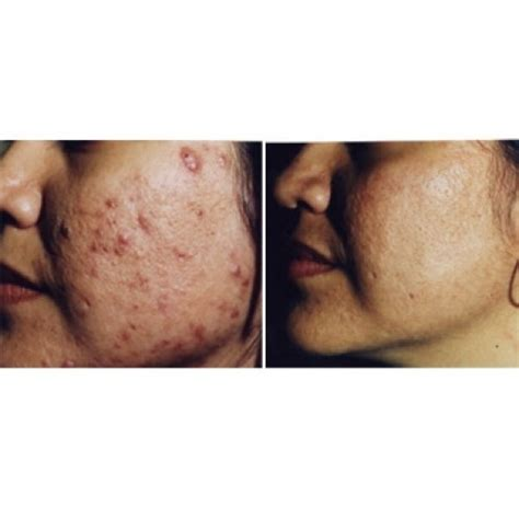 diode laser for acne scars laser acne treatment