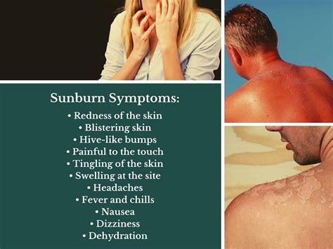 poisoning symptoms symptoms of poisoning sun sunburn