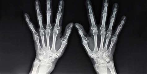 tesla x rays who s our some inventions by nikola tesla csglobe