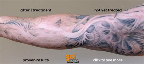 sleeve tattoo removal go removal allentown pa laser removal