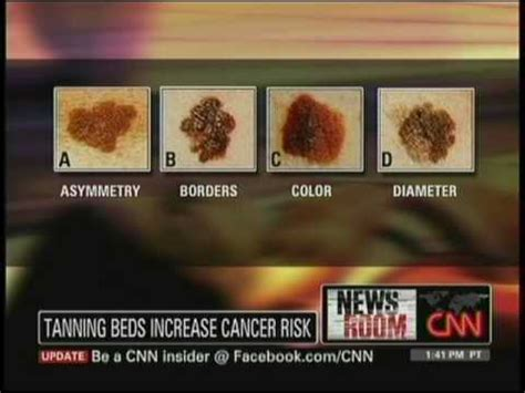 effects of tanning beds dr susan evans discusses the dangers of tanning beds on