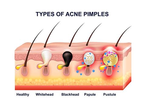 diagram of a pimple understanding acne learn about the types treatments
