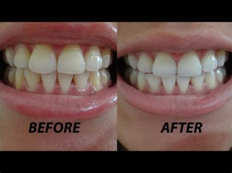 crest whitestrips supreme review crest 3d whitestrips before after demo review