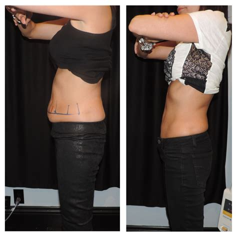 coolsculpting the guyer institute