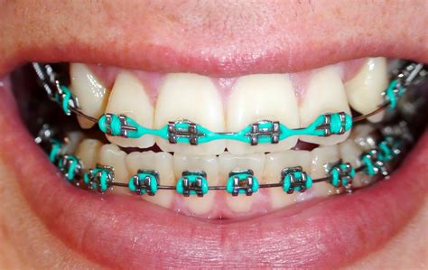 teal braces for the win