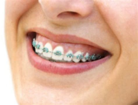 Biaya Pemutihan Gigi Di Jogja ingin memasang kawat gigi pasang behel di jogja klinik gigi dental yogyakarta