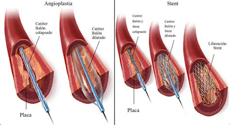 vasi coronarici ems solutions international marca registrada angioplast 237 a