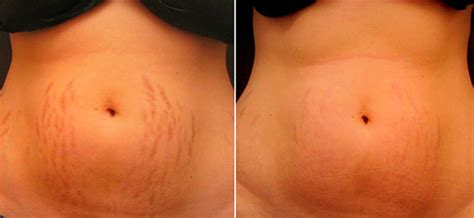 mederma tattoo removal what is the cost of stretch marks removal laser treatment