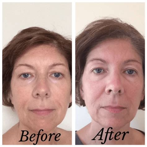 tria beauty laser before and after pictures tria age defying laser treatment beauty411