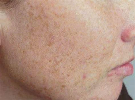 spot remedy age spots sun spots treatment at la fontaine aesthetics