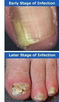 nail bed fungus keep your toenails healthy this summer tips for the millions of americans who suffer from