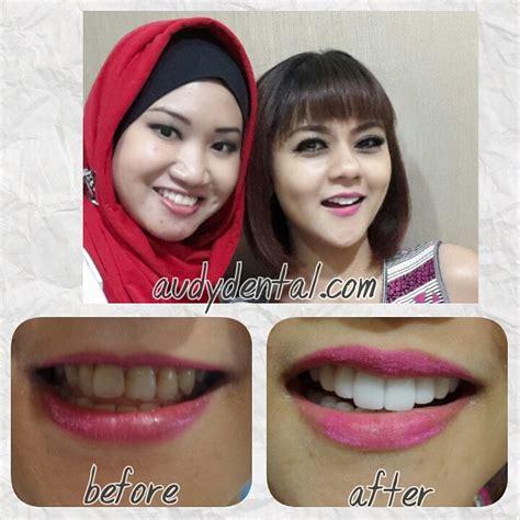 Biaya Pemutihan Gigi Veneer veneer gigi kelinci artis jenita janet audy dental