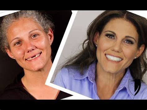 makeover woman 6 youtube press on veneers homeless woman gets smile makeover online