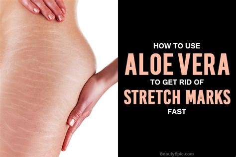 fast marks how to use aloe vera to get rid of stretch marks fast