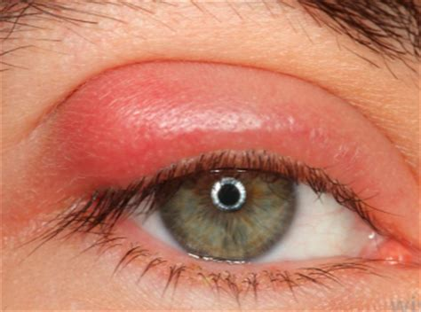 eyelid swollen swollen eyelid lower eyelid causes when blinking treatments and home