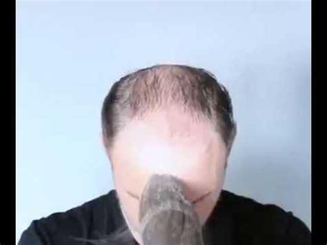 Jual Rambut Palsu Buat Cowok rambut palsu keren buat pria yang botak mantap