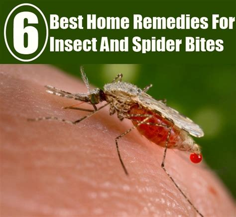 best home remedies for insect and spider bites diy home