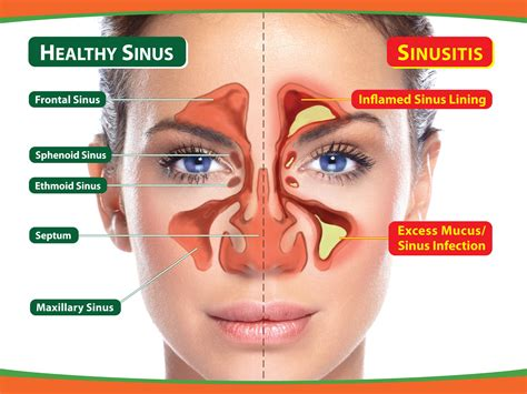 nasal congestion from the health library of sterlingmedicaladvice can i treat nasal congestion