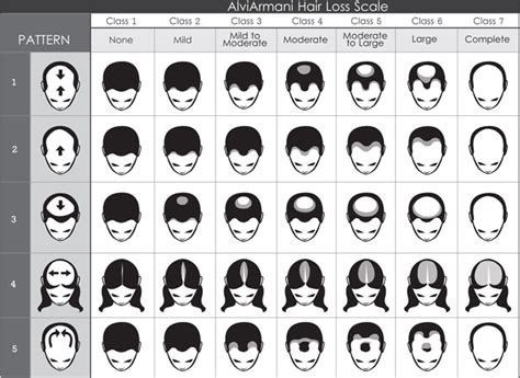 male pattern baldness hair loss rate hair loss scale beverly hills genetic pattern loss los