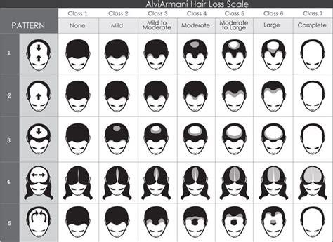 hamilton pattern hair loss hair loss scale beverly hills genetic pattern loss los