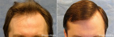 female mid frontal balding classification of hair loss in men bernstein medical