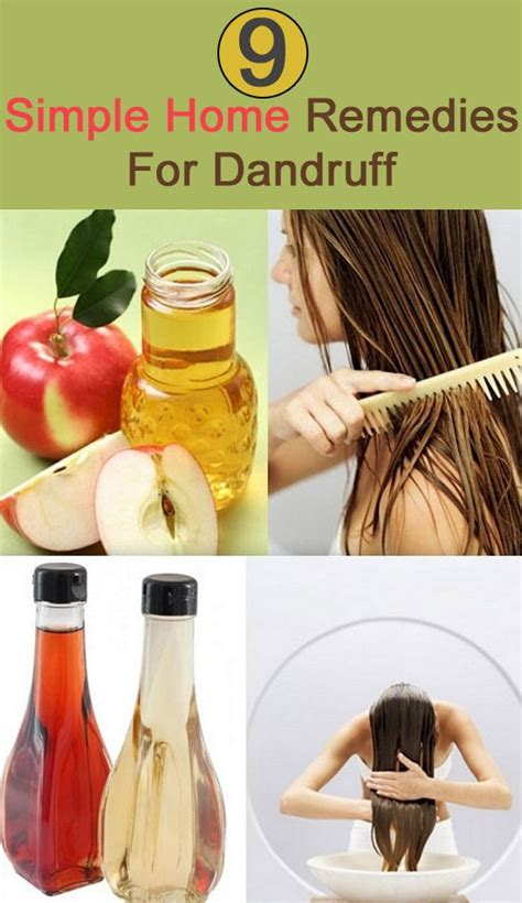 12 simple home remedies for dandruff that worked wonders
