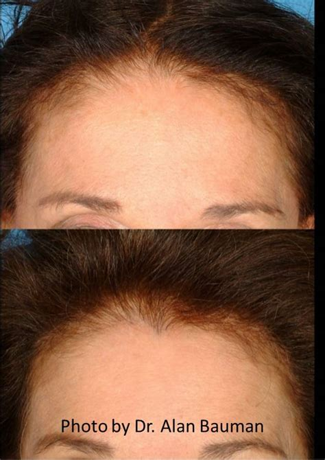 picture of woman hair linel female before and after transplant temples hairline