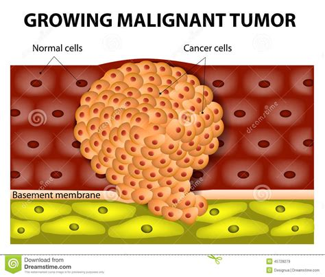 cancerous tumor on growing malignant tumor stock vector image 45728279