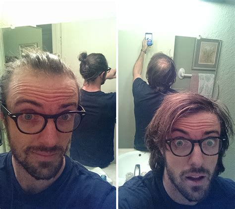 styles to cover baldness men are hiding baldness with man buns but it s riskier