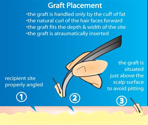 what does 2000 hair gradt look like hair transplant graft placement dallas hair restoration