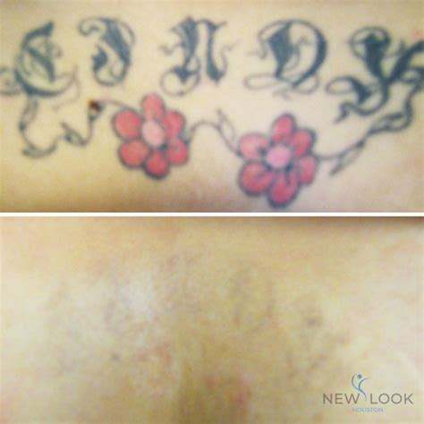 tattoo removal in texas laser removal new look houston