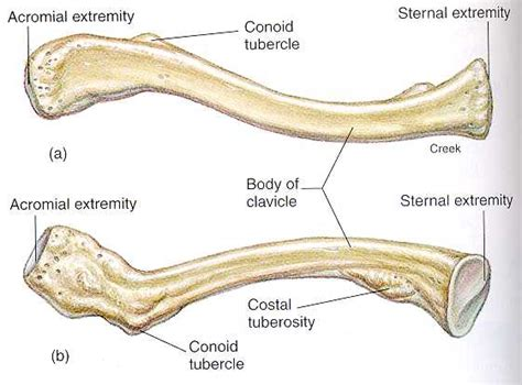 diagram of the clavicle 301 moved permanently