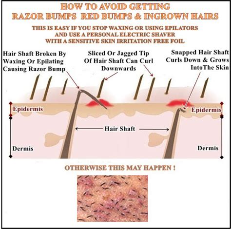 red women pubic hair removing facial hair for women tips the real cause of ingrown hairs and how to avoid getting them