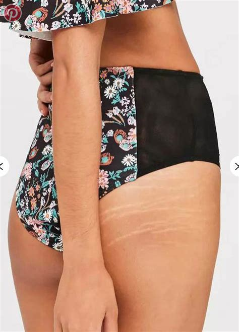 Miller Has Stretch Marks And Cellulite by Missguided Clothing Store Stops Editing Out Models