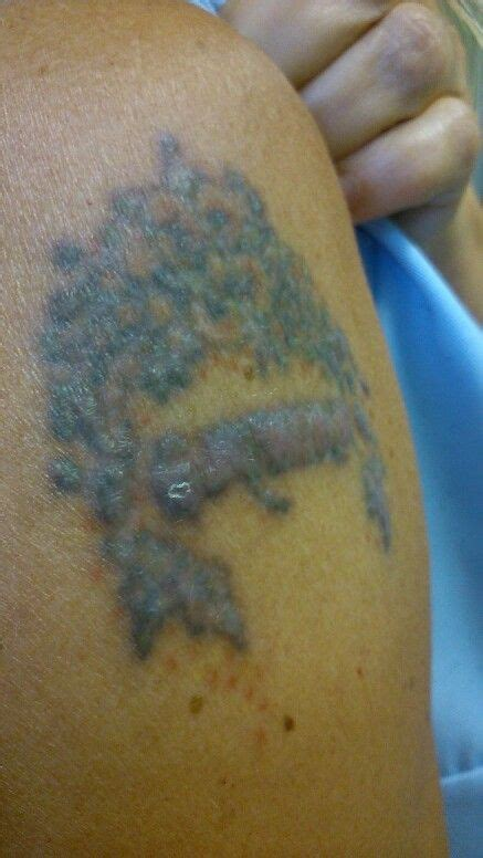 tattoo removal second session 23 best images about laser removal on