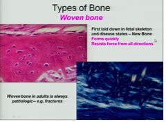 mosaic pattern of lamellar bone path exam 3 bone and neuro flashcards quizlet