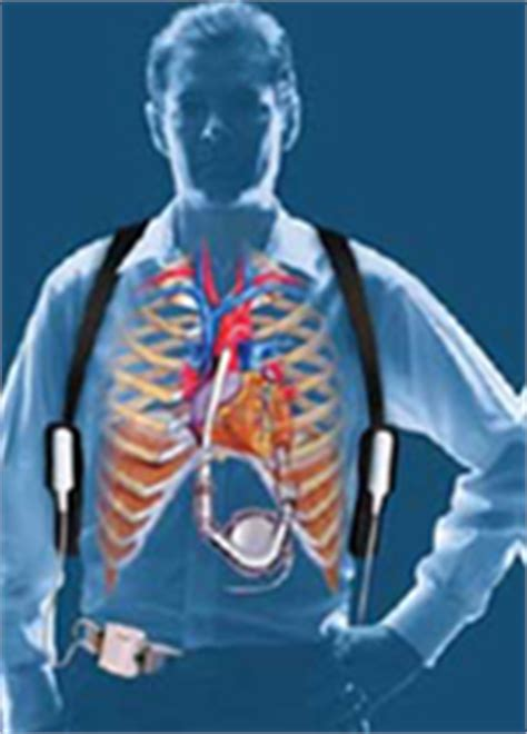 FAQs about the Left Ventricular Assist Device (LVAD) for ... Lvad Clinic