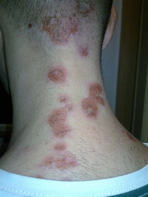 bed bug bites on neck what do bed bug bites look like 7 bite symptoms with
