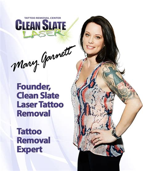 clean slate tattoo removal clean slate laser removal westchester 32 photos