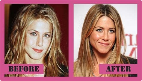 Did Aniston Get Implants by Cosmetic Surgery