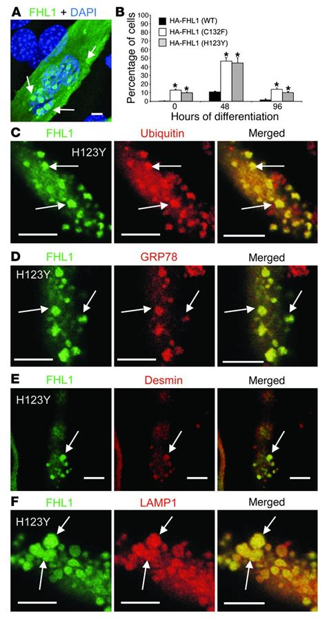 r protein mutants jci proteomic identification of fhl1 as the protein