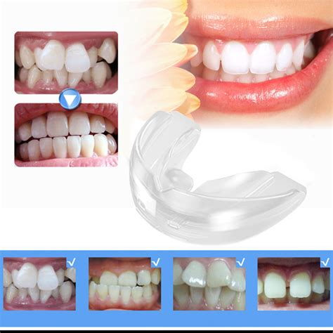 Trainer Ortho Trainer Alignment tooth teeth orthodontic appliance trainer alignment for braces hygiene dental care