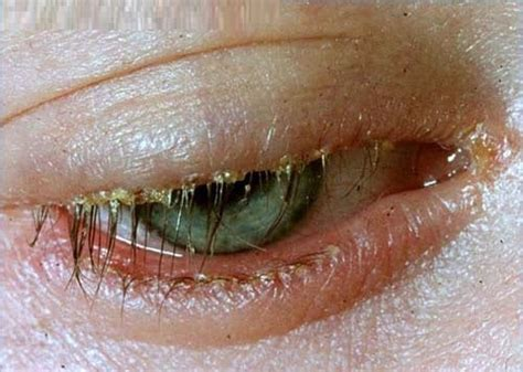 blepharitis images blepharitis beachmont