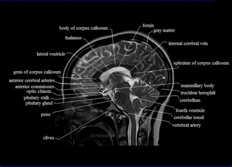 mri cross sectional anatomy brain cross sectional anatomy mri brain sagittal anatomy